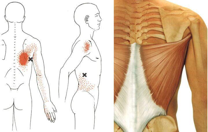 hogyan lehet kiküszöbölni a gerinc és az ízületek fájdalmát égési ízületi kezelés