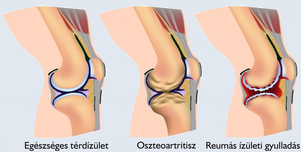 térd artritisz roham