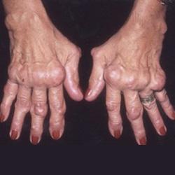 artritisz lábujjak kenőcs