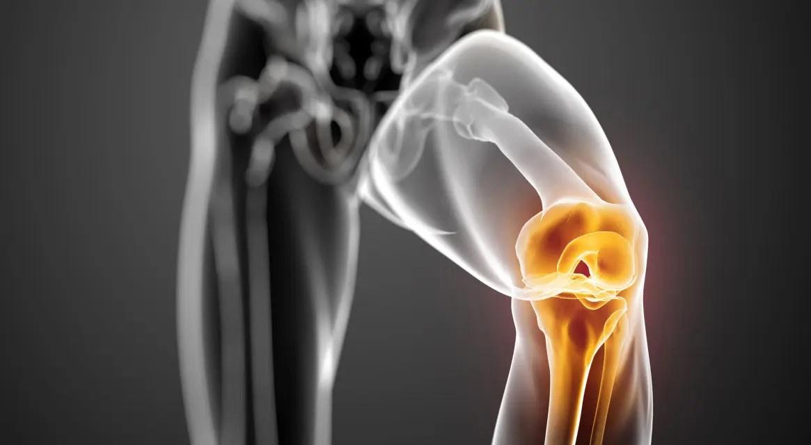térd instabilitás nincs fájdalom ahol a legjobb ízületi kezelés