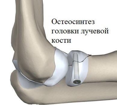 hogyan kezeljük a csípőpusztulást fájdalom a csontokban és az ízületekben járás közben