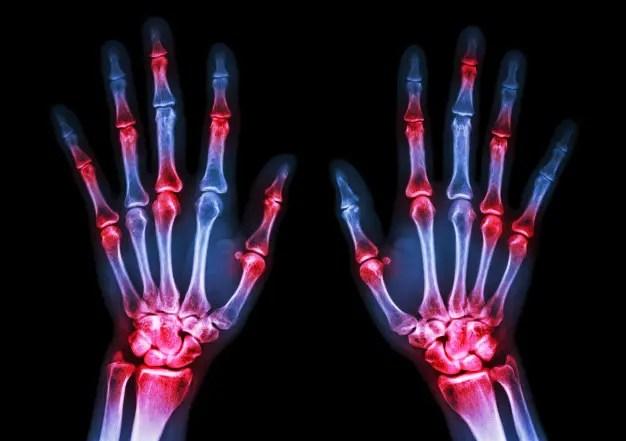 az artritisz megelőzésére