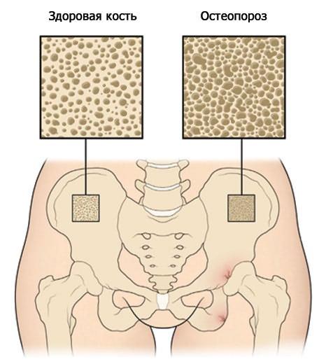 javasolja az ízületi fájdalmakat bilaterális artrózis kezelése