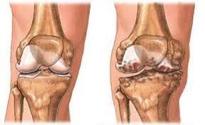 térdízület artrózisa kenőcsökkel történő kezelés éretlen ízületek kezelése