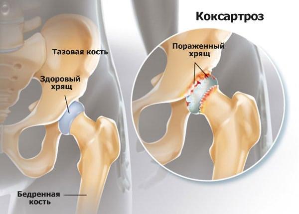 a csípőízület deformáló artrózisa 2 fokos kezelés