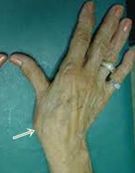 Az okostelefonok hüvelykujjbetegségeket okoznak - Hírek -