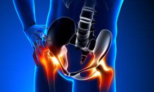 hogyan fáj a jobb csípőízület