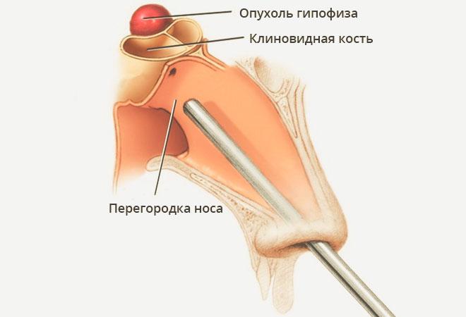 sacroileitis és ízületi fájdalmak