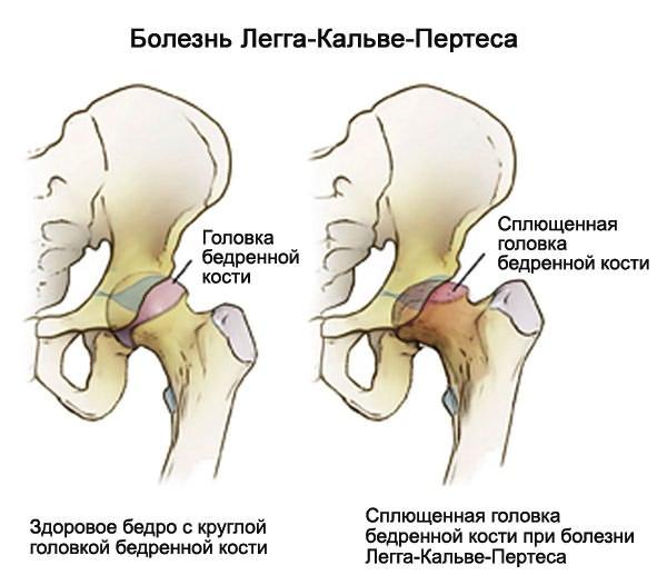 Betekintés: A felnőttkori csípőizületi betegségek