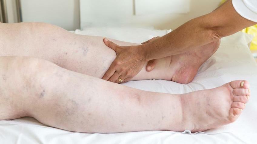 Az artrózis jellegzetes tünetei