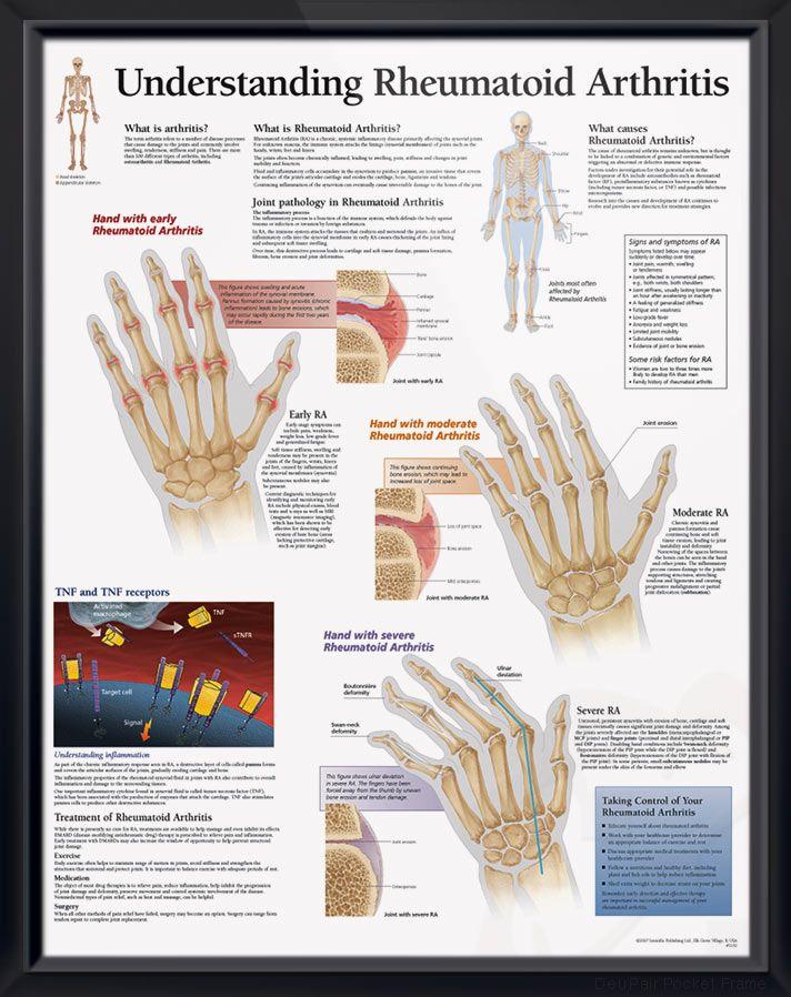 ízületi fájdalom reiter-szindróma ízület kenőcs
