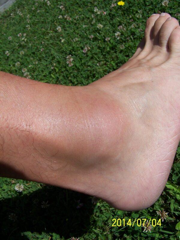 duzzadt lábak a bokaízületben