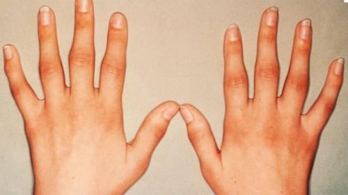 Hogyan okozhat egy gyulladt fog allergiát és hajhullást?