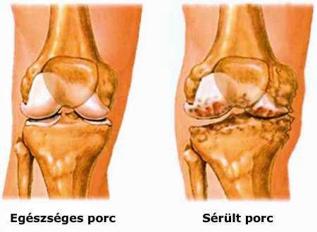 ízületi betegség térd alatt hogyan lehet kezelni az artrózist a lábán