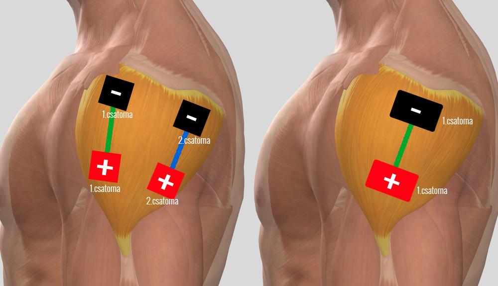 izületi gyógyszer teraflex izületi gyulladás lábon