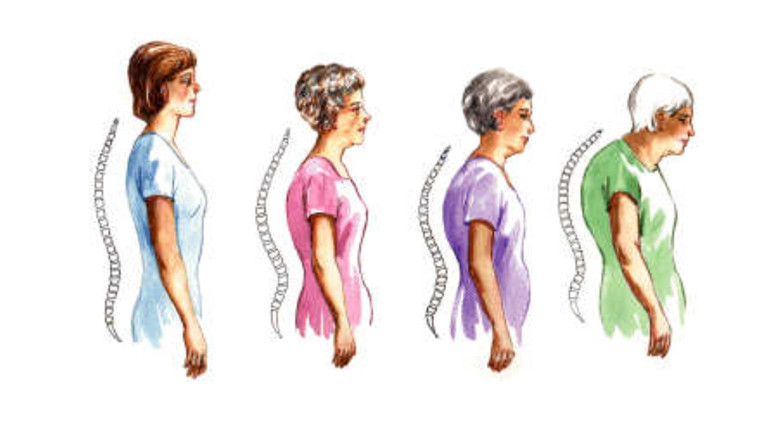 artrózis és csontritkulás diagnosztizálása és kezelése ízületi ízületek ózonkezelése