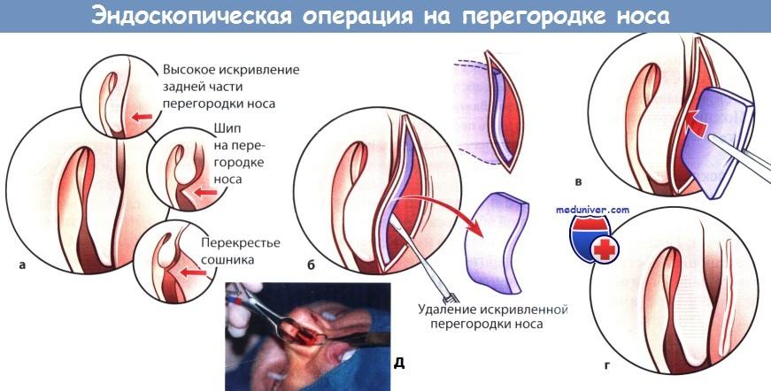 Az orrszárazság okai és kezelése