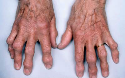 csípőkárosodás kezelése