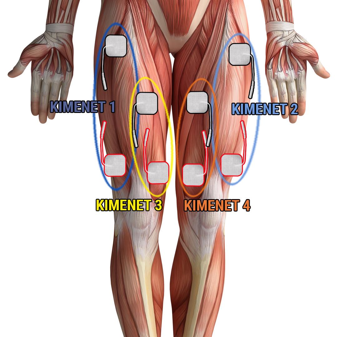 csípőfájdalom és sclerosis multiplex
