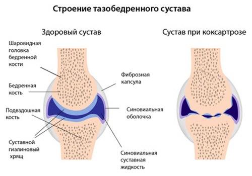 a csípőízület coxarthrosisának kezelése 2 fokkal