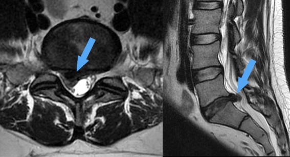 Lelet:Lumbalis gerinc CT vizsgálat - Mozgásszervi megbetegedések