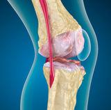 térdízületi gonarthrosis tünetei az első fokú artritisz kezelése