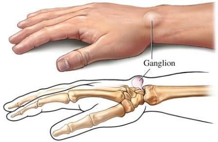 fájdalom a kéz ujjának ízületében hajlításkor