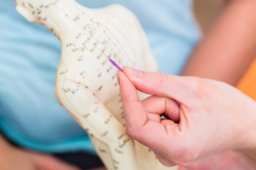 akupunktúra közös kezelés az ízületek nagyon fájdalmasak, mi az oka
