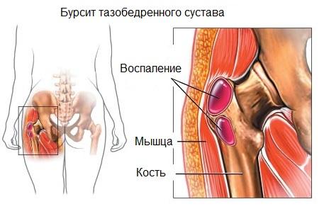 A csípőízület trochanteritisének teljes jellemzője: tünetek és kezelés - Homorú-domború lencse