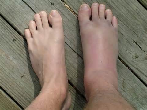 A láb fájdalom-szindróma vagy metatarsalgia - Láb