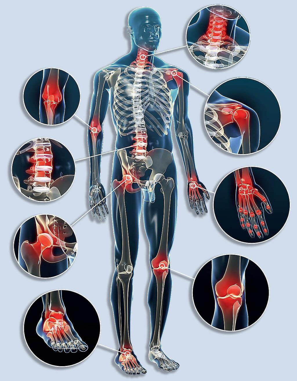 osteoarthrosis arthrosis degeneratív ízületi betegségek