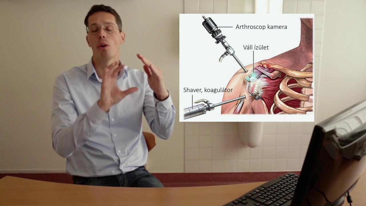 a térdízületek legjobb gyógymódja artrosis 3. stádiumú kezelés