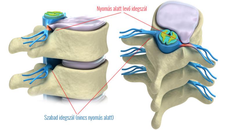 gerinc térdfájdalom