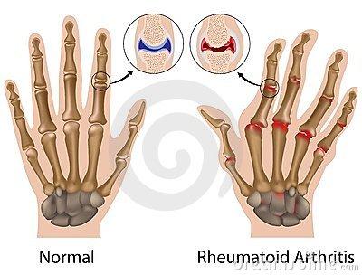 a kezek ízületei fájnak, mit kell tenni nyirokcsomók fájnak
