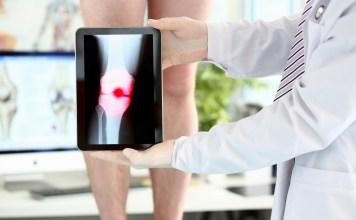 a kezére esett fáj az ízület a nyaki vállízület csontritkulása