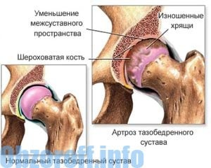 artrózis kezelési módszer