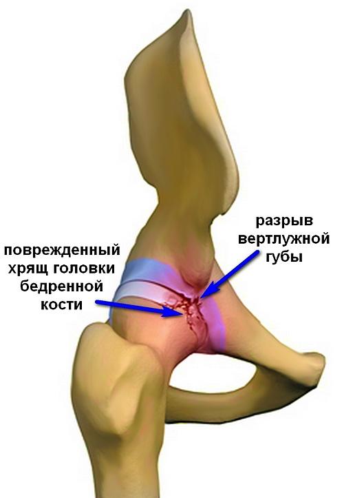 1. fokú csípőízület deformáló artrózisának kezelése