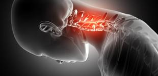 csípő-csontritkulás kezelése