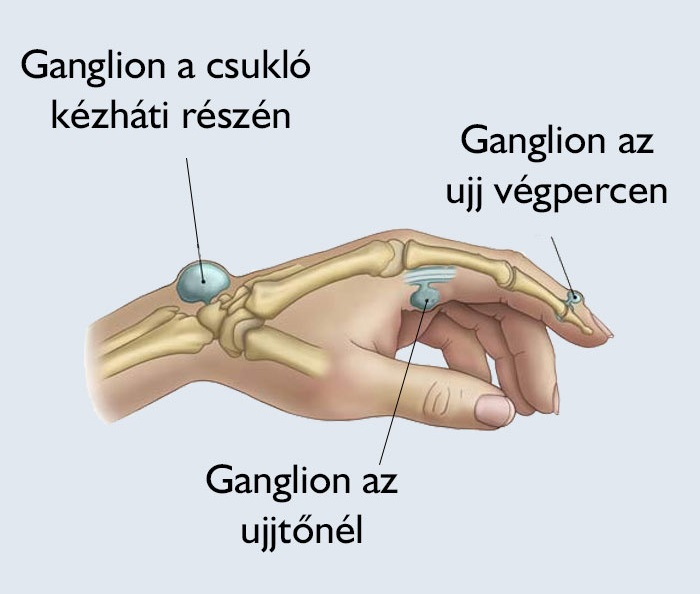 Égő fájdalom a kézben: így enyhíthetjük az ízületi gyulladást
