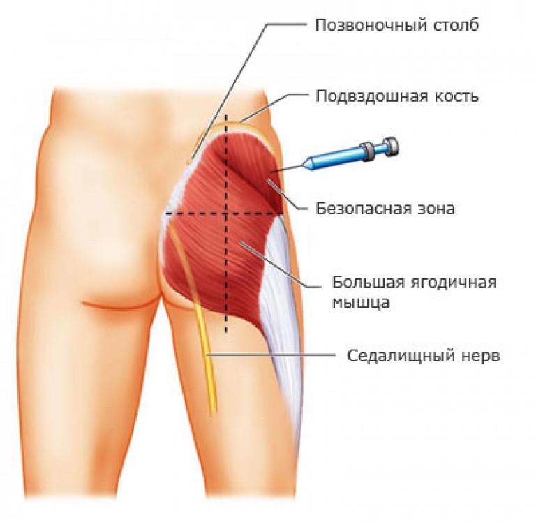 izmok intramuszkuláris gyógyszere