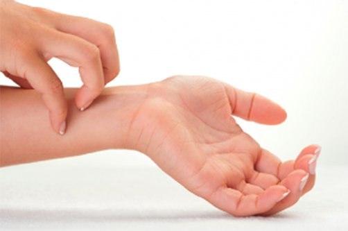 bőrbetegség a kezek ízületein