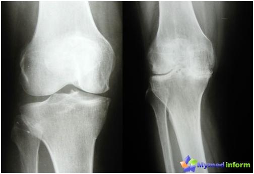 artrózis kezelése saki sárral ízületi gyulladás kezelése sós öntettel
