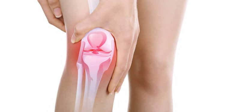 térdízületi tünetek kezelése lehetséges az ízület helyreállítása artrózissal