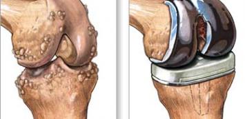 térd gonarthrosis kezelés térdízületek kialakulása ízületi gyulladás esetén