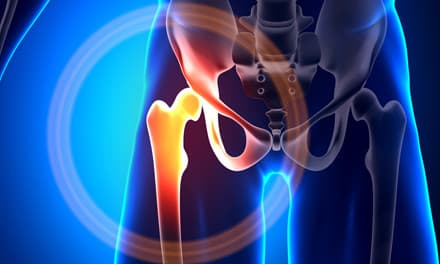 Csípőtorna, egyszerű gyakorlatok csípőfájdalom kezelésére. | felsomatraiskola.hu