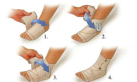 a boka deltoid ligamentumának károsodása ízületi osteoarthritis és kezelése