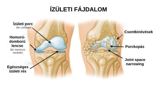 fájnak a lábak és a karok ízületei és csontjai