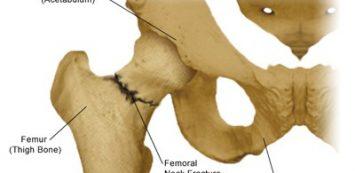 gyógyszerek a csípőízület ízületi gyulladásának kezelésére a könyökízület meghosszabbítása