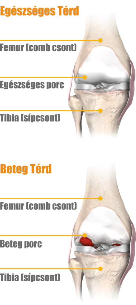 hogyan kell kezelni a vállfájdalom kezelését artrózis kezelése mytischi-ban