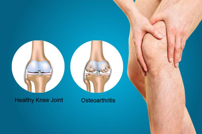 férfiakban és az artrózis kezelése